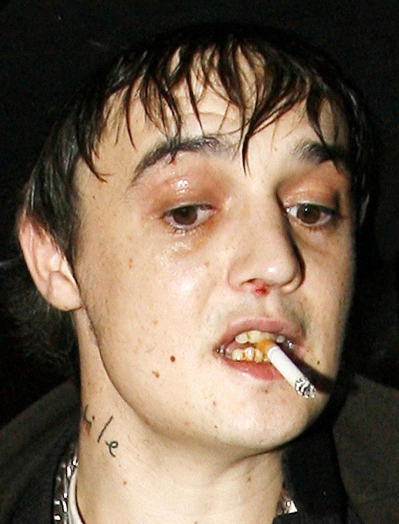 BREAKING+NEWS+FILE+PHOTO+Pete+Doherty+jailed+oqaNhtO6zwkx