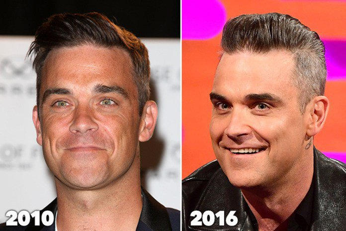Robbie-Williams'I've-had-some-fillers-and-I-injected-botox-Robbie-Williams